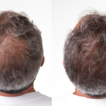 4 Culprits of Hair Loss