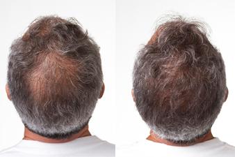 4 Culprits of Hair Loss
