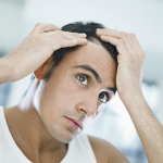 Are You To Young to be Balding? | Ultimate Hair Dynamics