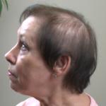 Before Hair Integration 1