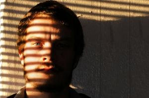 hair transplants are increasing in popularity among men