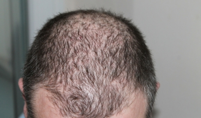 Alopecia comes in many forms and creates hair loss