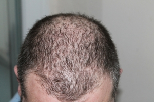 Hair loss doesn't have to lead to baldess