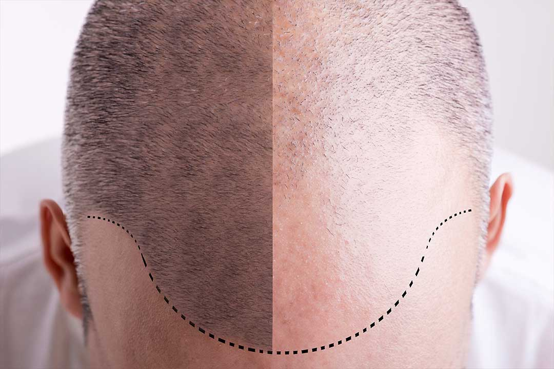 four alternatives to surgical hair replacement