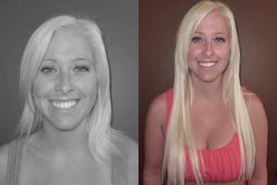 danielle-before-and-after.png